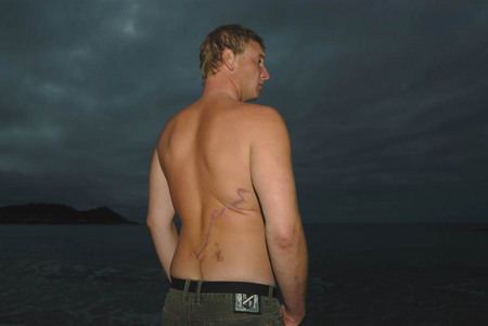 Todd Endris, shark attack survivor
